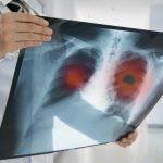Médico segurando Raio X de pulmão de doente.