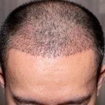 Topo da cabeça de homem com cabelo transplantado.